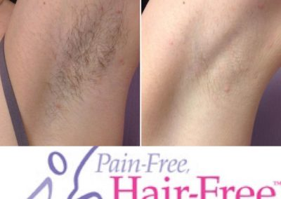 Under arm before and after removing unwanted body hair Dallas TX