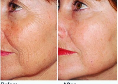 Before and After effective facial skin firming treatment Dallas TX