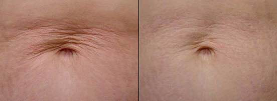 Stomach skin tightening treatment before and after Dallas TX