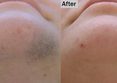 Before and after facial hair removal treatment Dallas TX