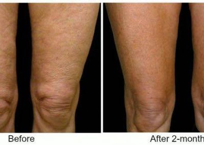 before and after skin firming treatment legs and knee in Dallas TX