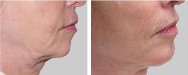 before and after chin skin tightening treatment Dallas TX