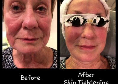before-after-skin-tightening